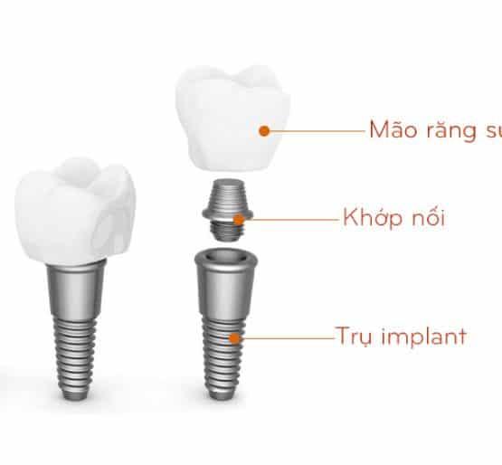 Quy trình trồng răng sứ như thế nào được gọi là nhanh và an toàn?