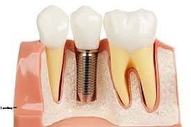 4 điều trồng răng cấm bạn cần phải nắm rõ hơn ai hết