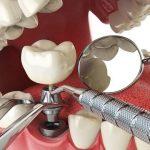 Trồng răng giá rẻ cần lưu ý những vấn đề nào?