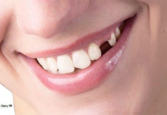 trồng răng hàm bao nhiêu tiền