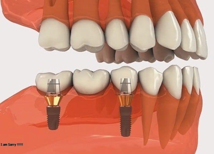 Thưa bác sĩ, tôi muốn hỏi trồng răng mất bao nhiêu tiền?