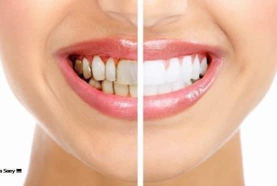 """Những """"rủi ro"""" khi trồng răng sứ giá rẻ bạn cần phải biết"""