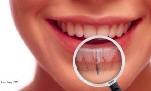 trồng răng sứ vĩnh viễn