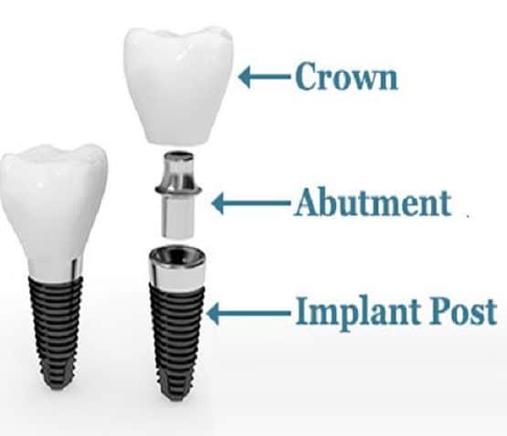 giá tiền trồng răng implant
