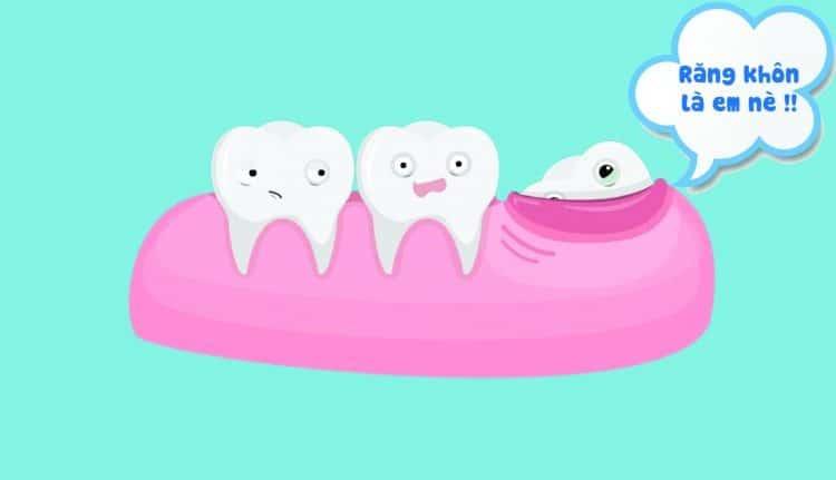 răng khôn có nên nhổ không
