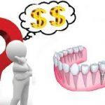 Trồng răng hàm hết bao nhiêu tiền, có bị đau không?