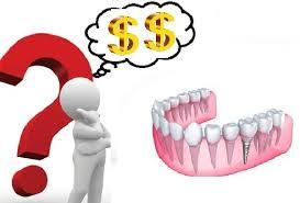 trồng răng hàm hết bao nhiêu tiền