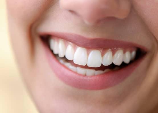 chi phí trồng răng giả