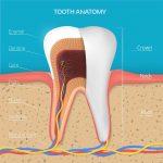 Điều trị tủy răng hàm khi nào? Răng hàm không đau có cần điều trị tủy ?
