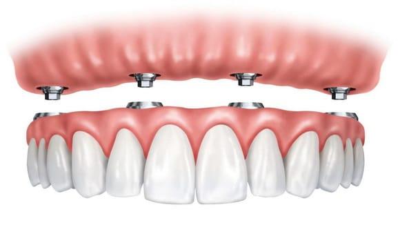 làm răng giả toàn hàm
