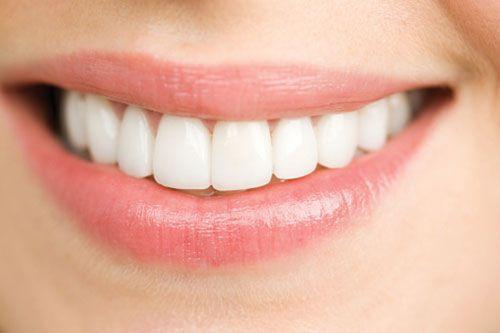 bọc răng sứ đẹp