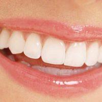 Đâu là địa chỉ bọc răng sứ đẹp tại Sài Gòn?