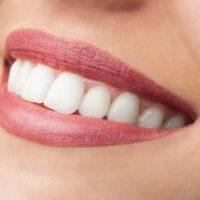Bọc sứ răng ở đâu tốt – uy tín – chất lượng nhất năm?