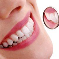 Bọc sứ cho răng và những vấn đề bạn cần quan tâm