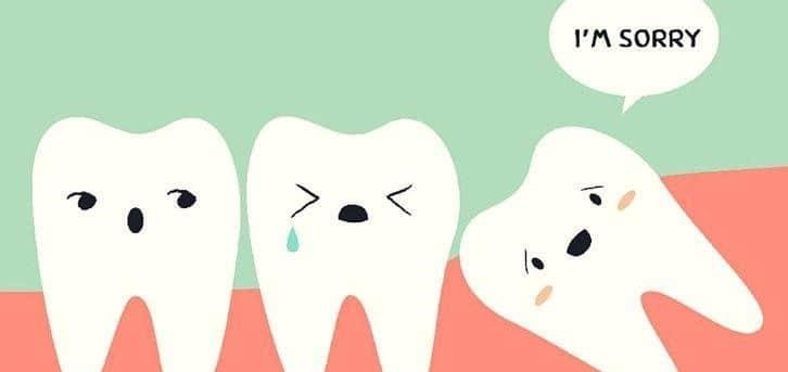 chi phí nhổ răng khôn mọc lệch