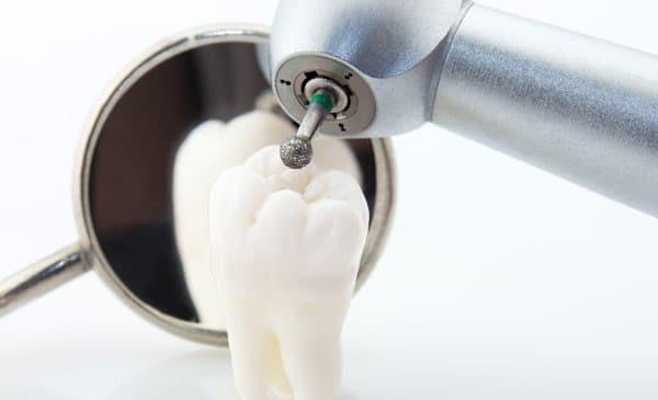 chi phí nhổ răng số 8