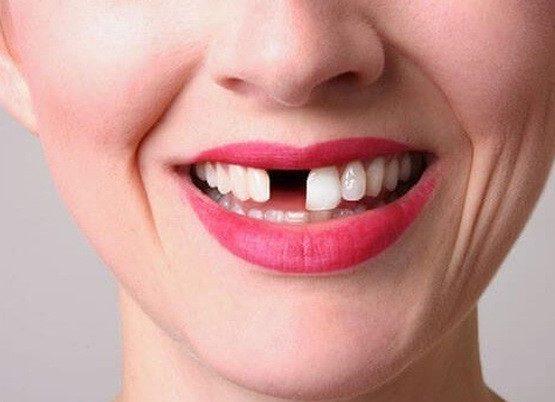chi phí trồng răng cửa