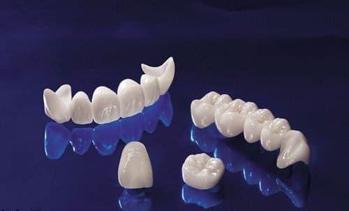 làm răng