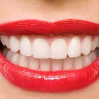 """Lý giải nguyên nhân khiến """"làm răng"""" đang là cụm từ hot nhất?"""