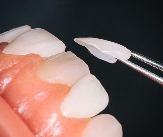 lắp răng sứ
