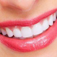 Dịch vụ lắp răng sứ an toàn và chất lượng tại Tphcm