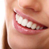 Làm sao để có được một hàm răng sứ đẹp như mơ ước?