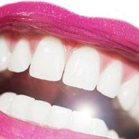 Tráng sứ răng là gì, hết bao nhiêu tiền?