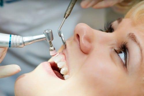 Cạo vôi răng có đau không khi sử dụng sóng siêu âm hiện đại?