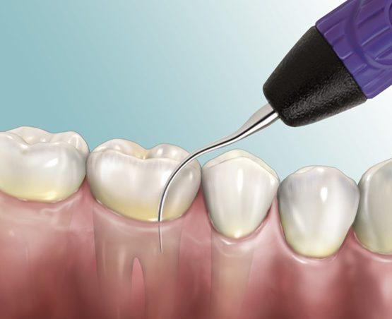 Khi nào nên lấy cao răng để có đảm bảo sức khỏe răng miệng?