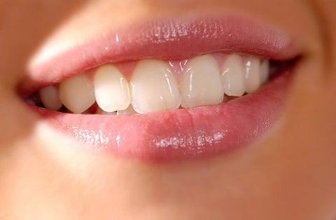 trám răng cửa bị sâu
