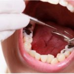 Phương pháp tốt nhất để trám răng sâu lỗ to là gì?
