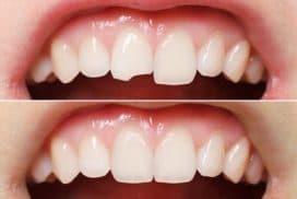 Biện pháp trám răng thẩm mỹ có bền không?