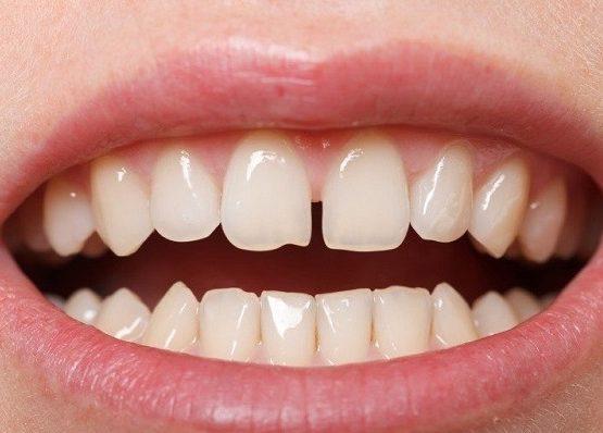 Trám răng thưa - cách định hình răng hiệu quả, tiết kiệm nhất hiện nay