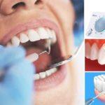 Một số điều cần biết về vôi răng bất cứ ai cũng nên biết