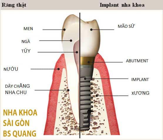 cau-tao-rang-gia-implant-nha-khoa-sai-gon-bs-quang