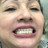 Trồng răng bằng phương pháp implant: ưu điểm, nhược điểm, tuổi nào trồng implant, quy trình trồng, có đau không, tuổi thọ răng implant, chi phí nhiêu tiền, chọn loại Implant nào phù hợp.